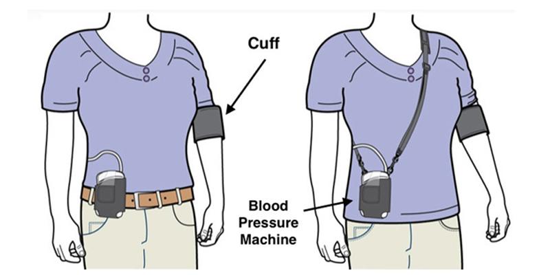 how is ambulatory blood pressure monitoring